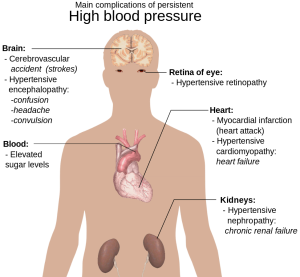 250px-Main_complications_of_persistent_high_blood_pressure_svg