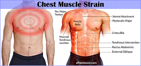 chest-muscle-strain